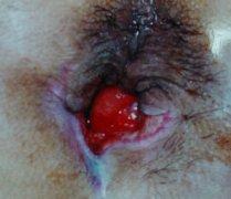 大便出血的原因有哪些